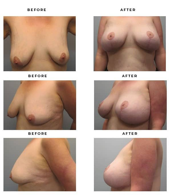 Before & After Photos- Breast Augmentation and Lift Surgeon. Scars and End Results, Recovery - Chief of Plastic Surgery- Dr. Della Bennett, MD. of Gemini Plastic Surgery - Award Winning Breast Lift Surgeon- Best Board Certified Plastic Surgeon in Los Angeles, Orange County, Inland Empire & Riverside County, Ca. Case Study #3294