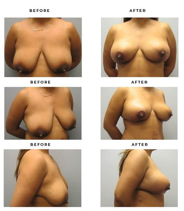 Before & After Galleries- Breast Augmentation and Lift Surgeon. Scars, End Results, Recovery Gallery - Chief of Plastic Surgery- Dr. Della Bennett, MD. of Gemini Plastic Surgery - Top ASPS Certified Breast Lift Surgeon- Best Board Certified Plastic Surgeon in Los Angeles, Orange County, Inland Empire & Rancho Cucamonga, Ca. Case Study #3318