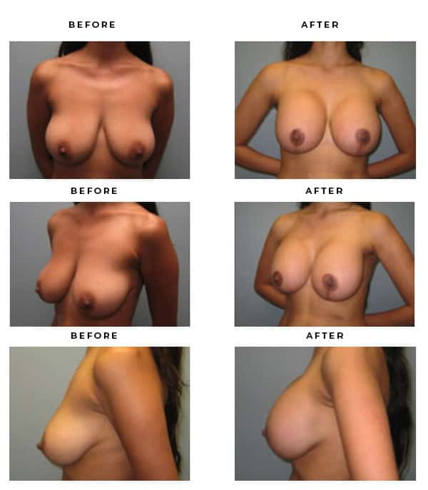 Before & After Photos- Breast Augmentation and Lift Surgery Galleries. Best Board Certified Plastic Surgeon in Los Angeles, Orange County, Inland Empire & Rancho Cucamonga, Ca. Case Study #4131