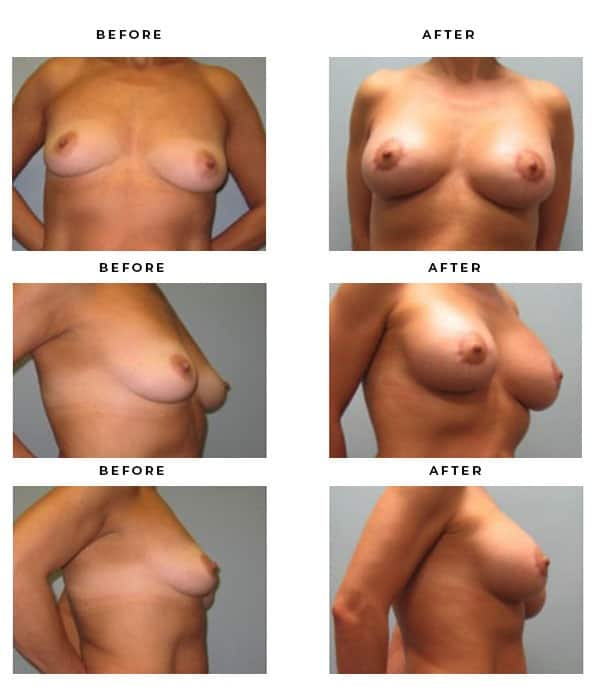 Before & After Pics- Breast Augmentation and Lift Surgery Galleries. Top Board Certified Plastic Surgeon in LA, OC, IE & Rancho Cucamonga, Ca. Case Study #4155