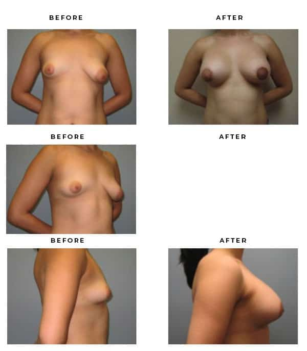 Before & After Pics - Breast Augmentation and Lift Surgery Galleries. Scars, End Results, Recovery Gallery - Chief of Plastic Surgery- Dr. Della Bennett, MD. of Gemini Plastic Surgery - Los Angeles Best Breast Lift Surgeon- Best Board Certified Plastic Surgeon in Los Angeles, Orange County, Inland Empire & Rancho Cucamonga, Ca. Case Study #4176