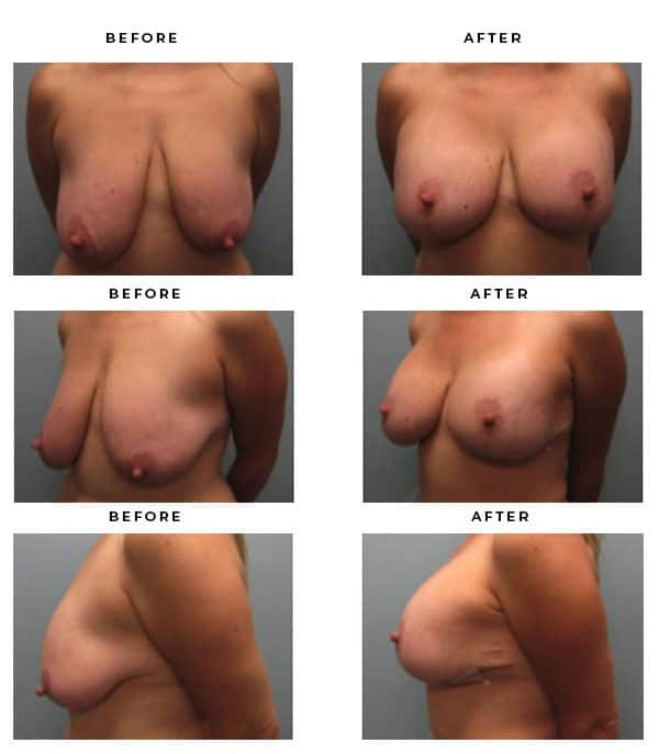 Before & After Pics - Breast Augmentation and Lift Surgery Galleries. Scars, End Results, Recovery Results - Award Winning Chief of Plastic Surgery- Dr. Della Bennett, MD. of Gemini Plastic Surgery - See Results for Breast Lift Surgeon- Best Board Certified Plastic Surgeon in Southern California. Case Study #4232