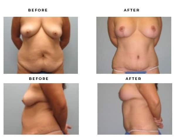 Before & After Photos- Mommy Makeover- Breast Augmentation, Breast Lift, Tummy Tuck, Abdominoplasty - Dr. Della Bennett, MD. of Gemini Plastic Surgery in Rancho Cucamonga. Case Study #2265