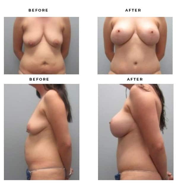Before & After Images- Mommy Makeover- Boob Job, Breast Augmentation, Tummy Tuck, Abdominoplasty- Dr. Della Bennett, MD. of Gemini Plastic Surgery in Rancho Cucamonga. Case Study #2271