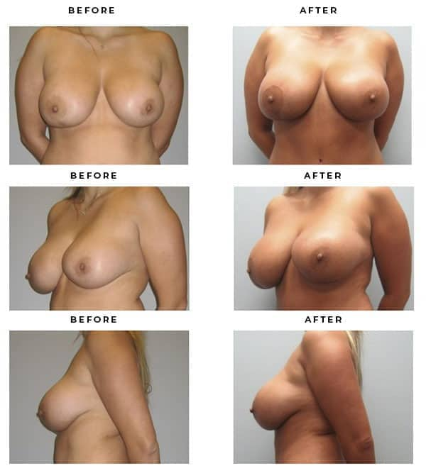 Before & After Galleries- Mommy Makeover- Breast Lift. Lipo, Tummy Tuck, Saline Breast Implants - Dr. Della Bennett, MD. of Gemini Plastic Surgery in Southern California. Top Board Certified Plastic Surgeon. Case Study #2303