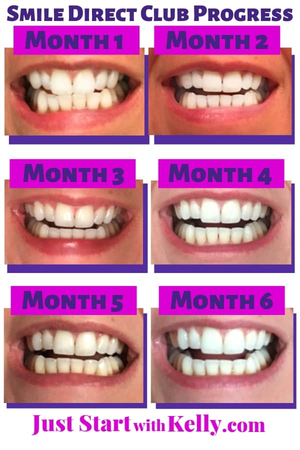 Smile Direct Club Clear Aligners Color Options