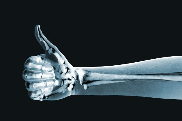 3D X-Ray