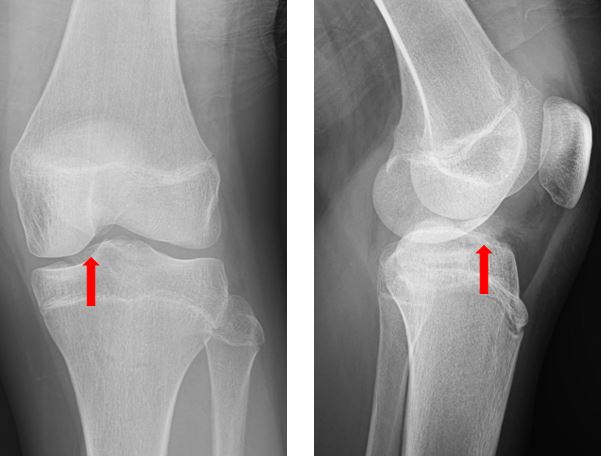 13 year old boy's x-ray image presenting with knee pain after a fall resolution