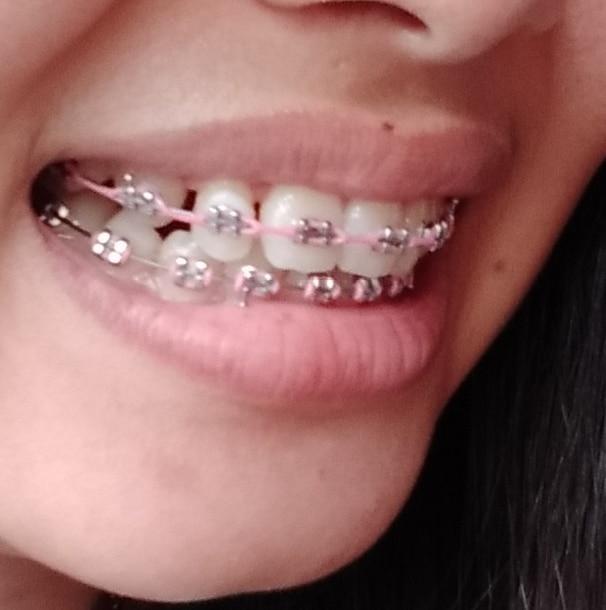 behel gigi