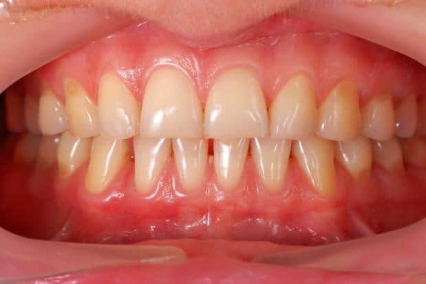 Treating Periodontitis in Costa Rica