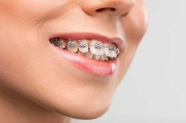 llagas ortodoncia