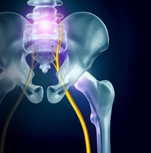Die Symptome bei eine Ischiassyndrom ein stechender, einschießender Schmerz. Der vom unteren Rücken, über das Gesäß, der Kniekehle bis hin zum Fuß austrahlt.