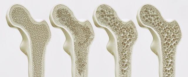Wenn etwa 30 Prozent der Knochenmasse eingebüßt wurden, sind Veränderungen im Röntgen-Bild zu erkennen: Die äußere, dichte Knochenschicht (Kortikalis) erscheint dünner und das Gerüst aus Knochenbälkchen (Trabekel) wirkt ausgedünnt.