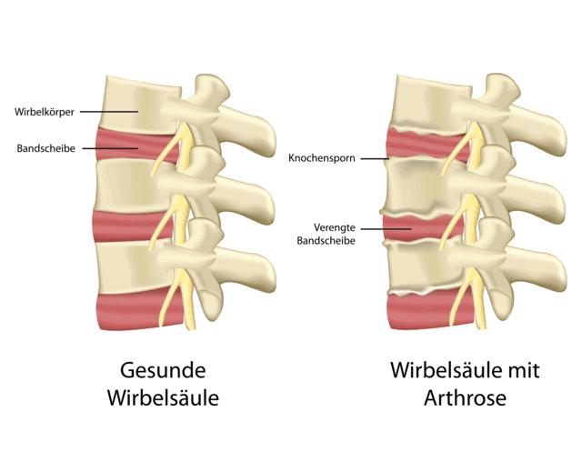Eine Arthrose bezeichnet einen meist im alter auftretenden Gelenkverschleiß durch Überlastung, Fehlbelastung oder auch Verletzungen. Eine Entzündung ist meist die Folge, die dann den Verschleißprozess beschleunigt.