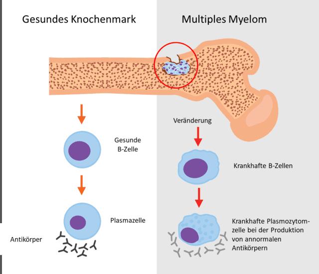 Ein Plasmozytom sitzt im Knochenmark und beschreibt eine unkontrollierte Vermehrung von Plasmazellen. Plasmazellen gehören zu den B-Zellen des Abwehrsystems und produzieren Antikörper. Das mehrfache Auftreten von Plasmozytomen ist unter dem Krankheitsbild des Multiplen Myeloms beschrieben.