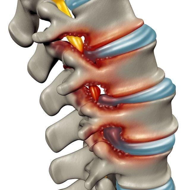 Bei einer Spinalkanalstenose oder auch Wirbelkanalverengung wird speziell bei der Bildung eines Hohlkreuzes starker Druck auf das Rückenmark ausgeübt, was zu starken Schmerzen führt.