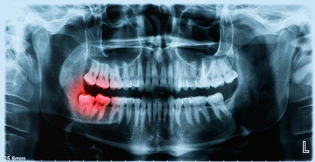 Wisdom Teeth Removal - Oral Surgery