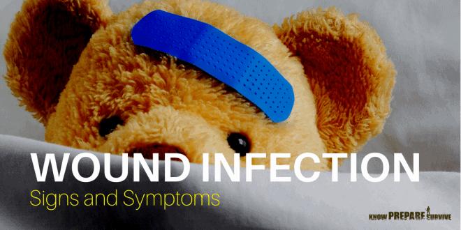 Wound Infection Signs and Symptoms