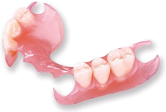 Prothèses dentaires amovibles docteur amouyal paris 16