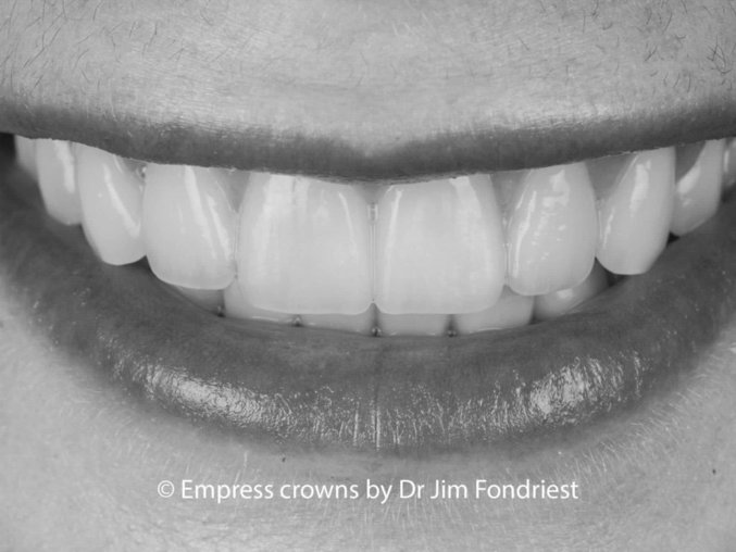 Smile makeover done with Empress crowns