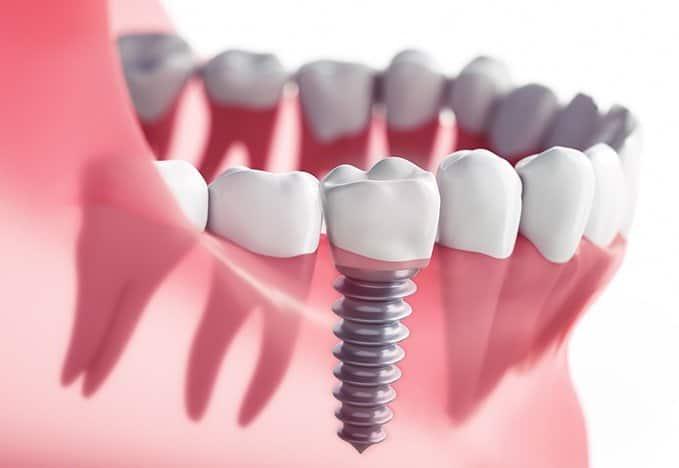 Implante Dentare
