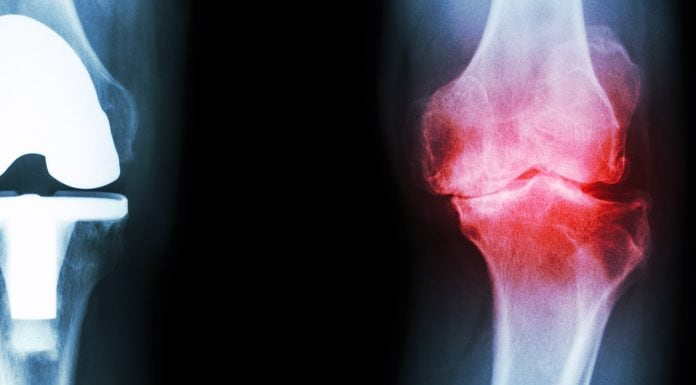 stem cell therapy for osteoarthritis knees