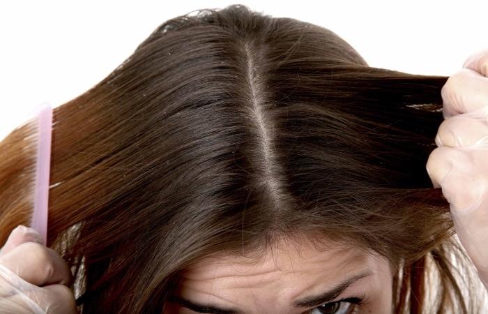 Перхоть - причины и лечение при сухости кожи