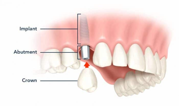 average-cost-of-dental-implants-in-Costa-Rica