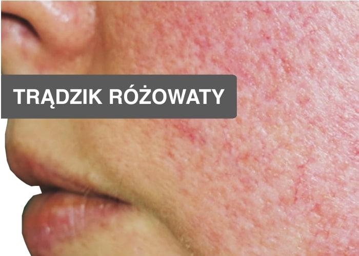 Helicobacter pylori objawy skórne