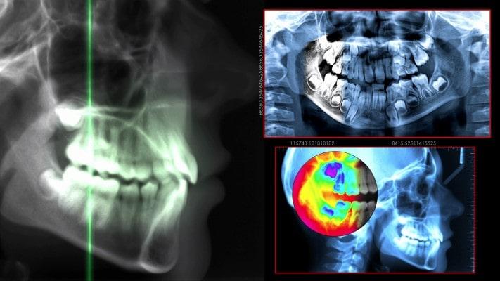 Cone-beam Imaging