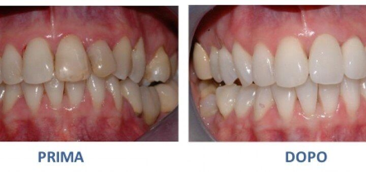 Come avere i denti più bianchi ?