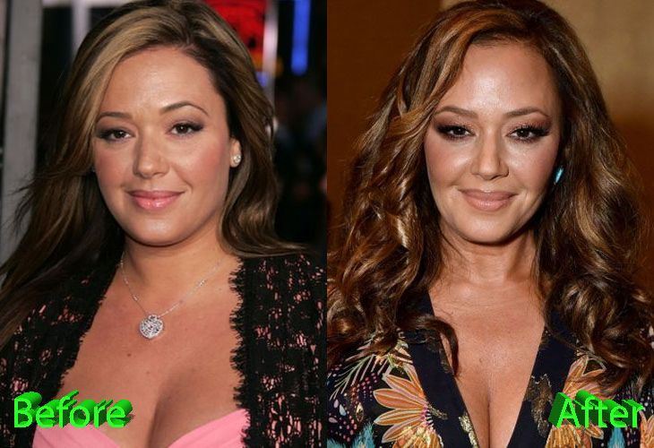 celeb plasticsurgery b6947496c86f1ba4a56eff6e2b672ca4 20201203 Leah Remini before and after Plastic Surgery November 10, 2020
