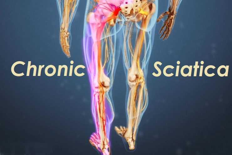 Chronic Sciatica