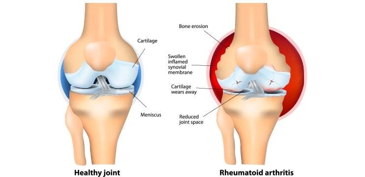 Diagrama da artrite reumatóide