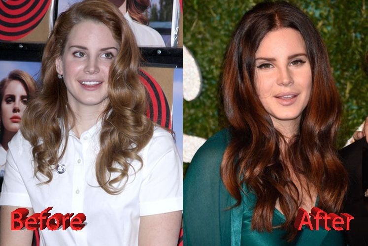 Damning details about Lana Del Rey's plastic surgery