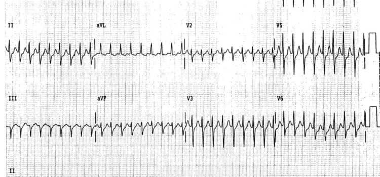 A 62-Year-Old Woman with Dizziness and Palpitations