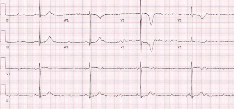 A 60-Year-Old Woman with Hypertension, Diabetes, and Sudden Fatigue and Weakness