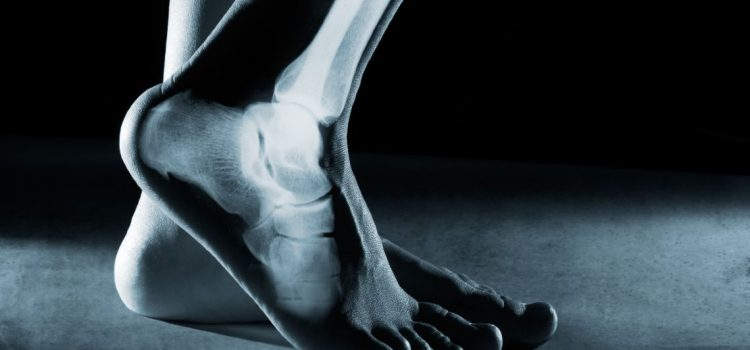 The Implementation of Nurse-Intiated Ankle and Foot X-rays in an Urgent Care Setting