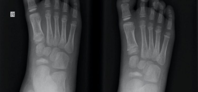 A 5-Year-Old with Foot Pain of Unknown Origin
