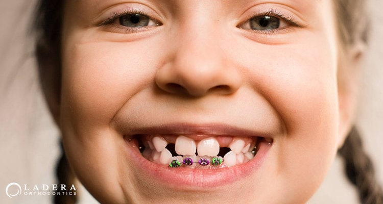 Should My Child Get Braces Before All The Baby Teeth Have Fallen Out?