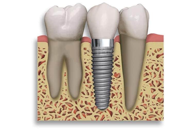 implantologist dubai