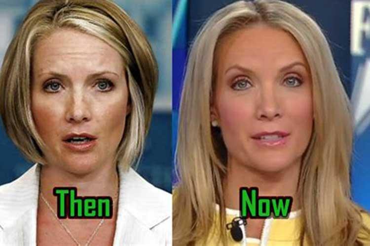Do you think Dana Perino has had plastic surgery?
