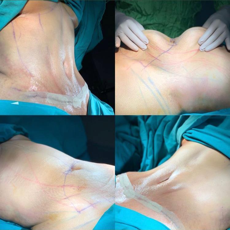 karın germe ameliyatı