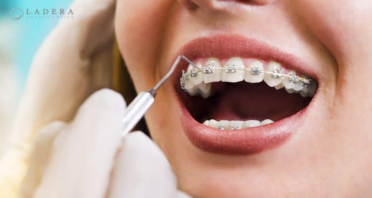 appointment for braces