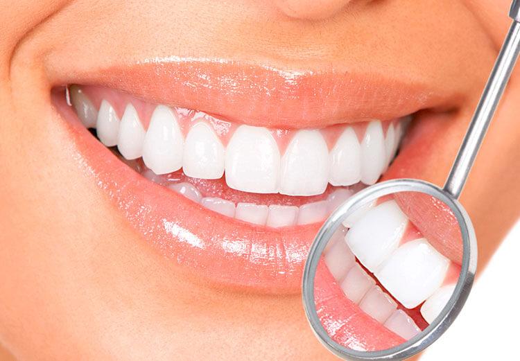Ecco Come avere i denti più bianchi Sbiancamento dentale professionale con Mascherine Personalizzate 1