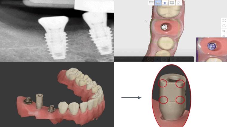 Como escanear implantes con scaner intraoral