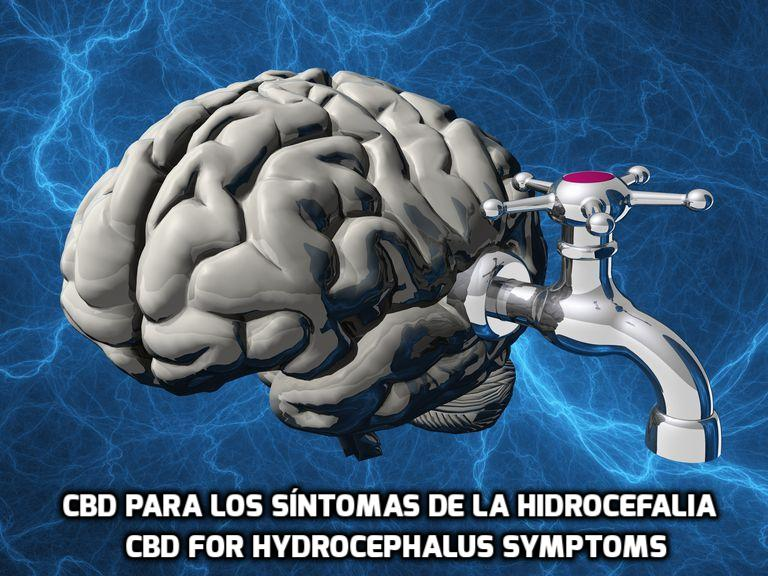 How CBD can help for Hydrocephalus Symptoms