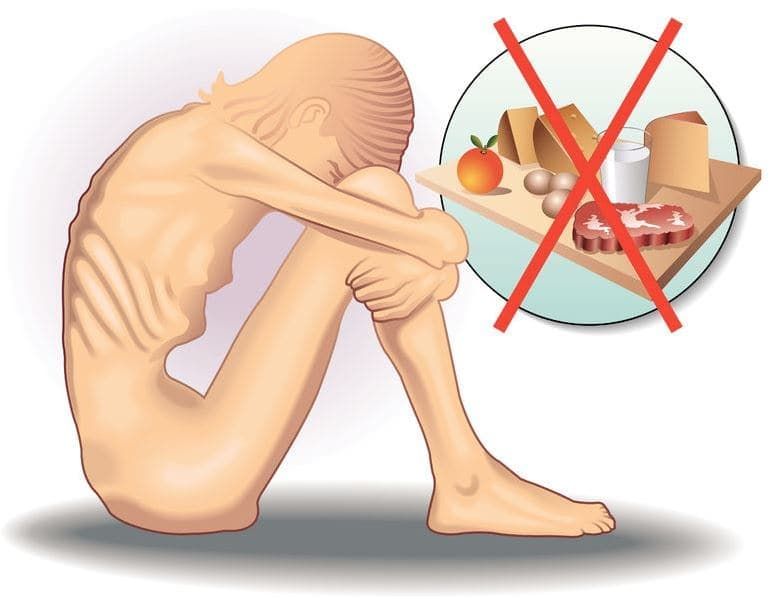 Eating Disorders: Causes, Types, Symptoms and Treatments