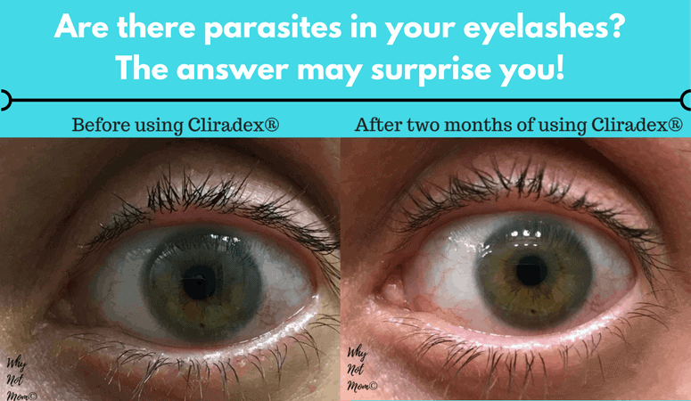 Before and after picture of treatment using Cliradex for ocular demodicosis or demodex parasite eyelid margin disease