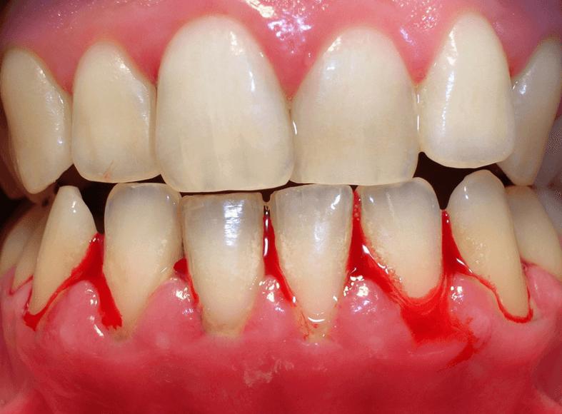 cos'è la Parodontologia e come si cura la parodontite 2